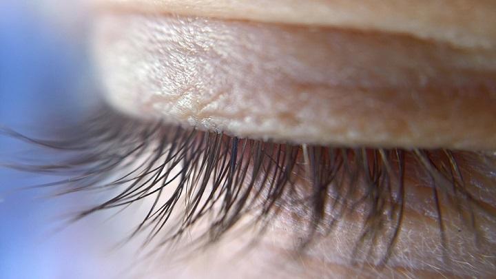 Blefaritis y maquillaje: ¿Puedo usar maquillaje si tengo blefaritis? ¿Cuál?